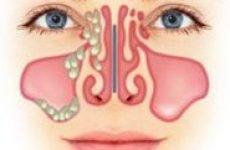 Лікування етмоїдиту, гострої і хронічної форми