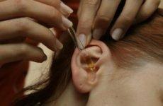Якщо болить вухо, що робити в домашніх умовах?