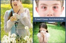 Поліноз, що це таке, симптоми і лікування у дітей та дорослих