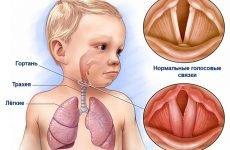 Ларингіт – лікування і симптоми у дітей до року і старше