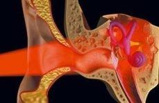 Шум у вухах: причини і лікування