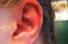 Про що намагаються сказати, що палають вуха: від народних прикмет до захворювань