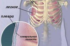 Плеврит легенів