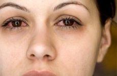 Чому виникають постійний нежить і чхання?