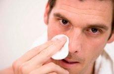 Сухість у носі: причини виникнення і лікування