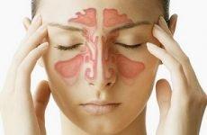 Лікування синуситу в домашніх умовах ефективно