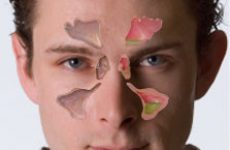 Хронічний синусит, симптоми і лікування