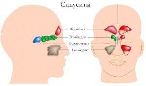 Гострий синусит, симптоми і лікування захворювання