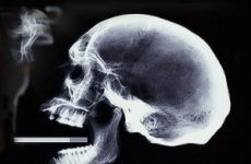15 фактів про куріння — ЛораМед