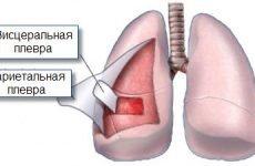 Плеврит: симптоми гнійного, сухого, выпотного плевриту