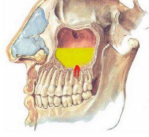 Одонтогенний верхньощелепної синусит