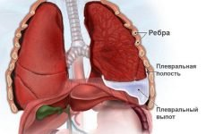 Ексудативний плеврит: причини, симптоми і лікування
