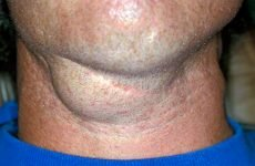 Як довго болить горло при ангіні?