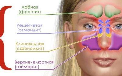 Як визначити і вилікувати гострий синусит?
