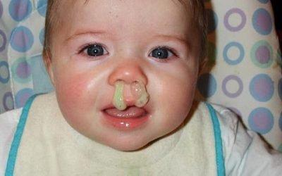 Зелені соплі у дитини, лікування за доктором Комаровським
