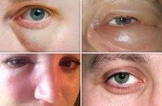 Набряк носа, обличчя та очей при гаймориті