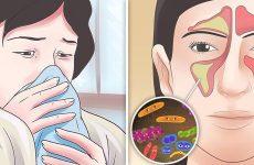 Як лікувати односторонній гайморит?