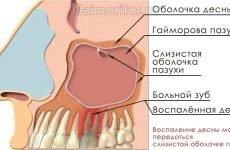 Симптоми і лікування одонтогенного гаймориту