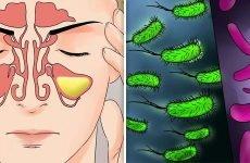 Характерні симптоми і методи лікування синуситу