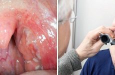 Ознаки розвитку сифілітичної ангіни, що потрібно знати про захворювання?