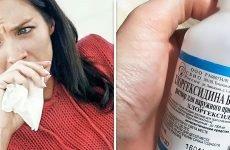 Можна полоскати горло хлоргексидином при ангіні?