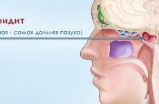 Як визначити і вилікувати сфеноидит?