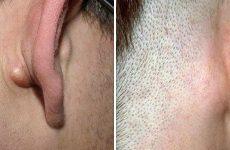Чому лімфовузли за вухом запалюються і болять?