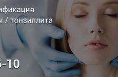 Класифікація тонзиліту за МКБ 10
