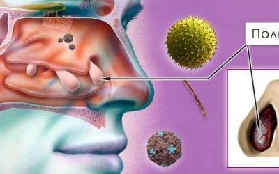 Як виявляється хронічний поліпозний риносинусит і як його лікувати?