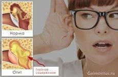 Чому після отиту пропадає слух і як його відновити?