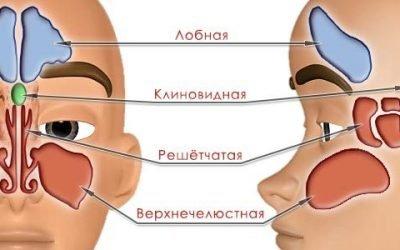 Види пансинусита – гострий, хронічний, поліпозний, гнійний, їх симптоми та лікування