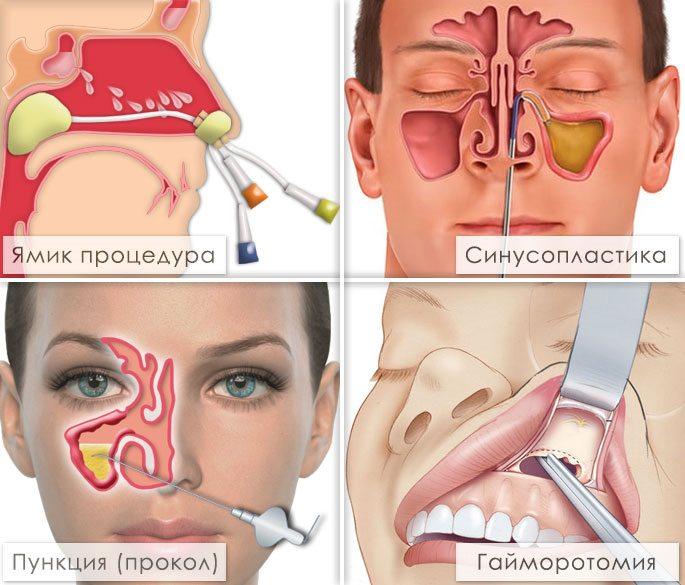 Ямик процедура при гайморите в домашних условиях   Лечение гайморита 115