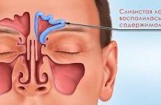 Лікуємо катаральний фронтит за кілька днів