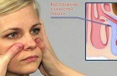 Які ліки приймати при верхнечелюстном синуситі