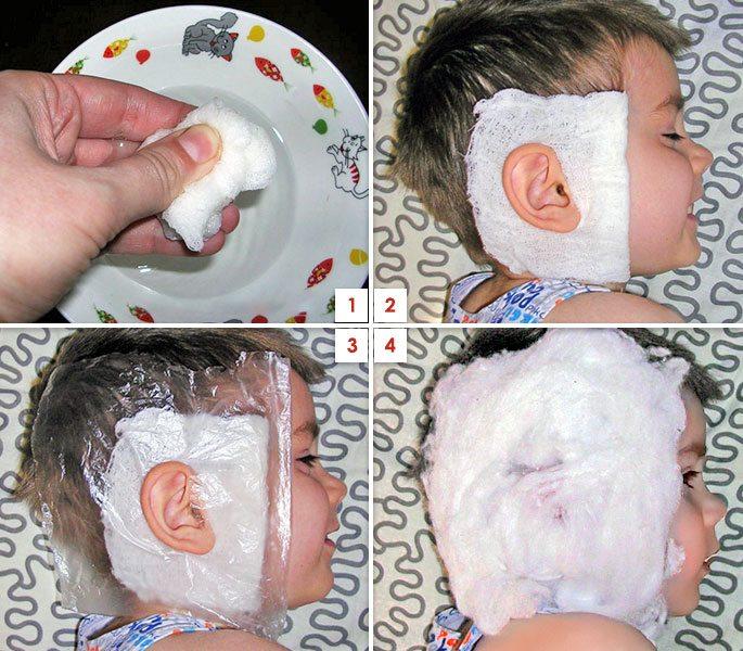 Как сделать компресс с димексидом для ребенка 441