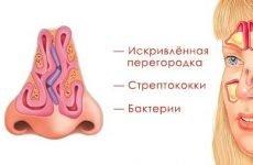 Симптоми і лікування гнійного гаймориту в домашніх умовах