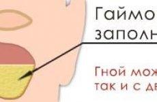 Симптоми гострого гаймориту і варіанти лікування