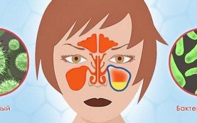 Бактеріальний та вірусний гайморит – відмінності в симптоми і лікування