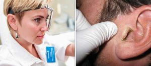Грибок вух у людини – якими препаратами це лікується?