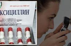 Порівняння амоксициліну з іншими препаратами при лікуванні отиту