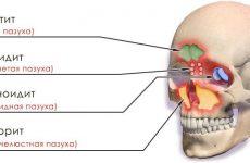 Причини виникнення, симптоми та лікування хронічного синуситу