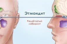 Етмоїдит, його різновиди – лікування гострої та хронічної стадії