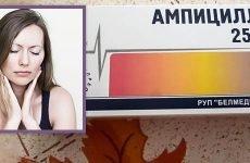 Застосування пеніциліну при ангіні – ампіцилін і більш сучасні аналоги