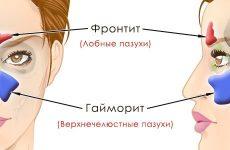 Що робити якщо при гаймориті болить лоб?