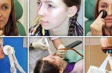 Фізіолікування при гаймориті та інші процедури