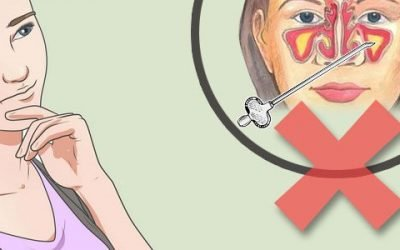 Як лікувати гайморит без проколу?