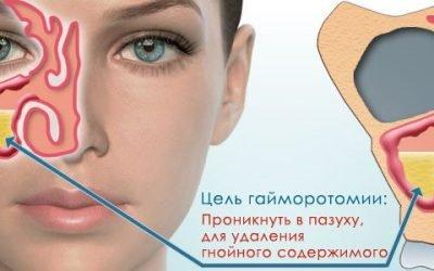 Гайморотомія – радикальне лікування захворювань носа
