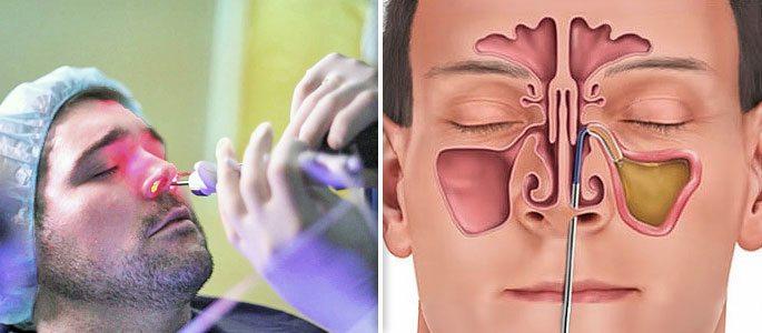 Процедура аккларент синусопластика в ростове на дону