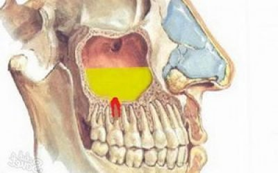 Запалення верхньощелепної пазухи