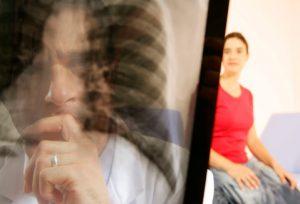 Онлайн тест на ХОЗЛ (хронічна обструктивна хвороба легень)